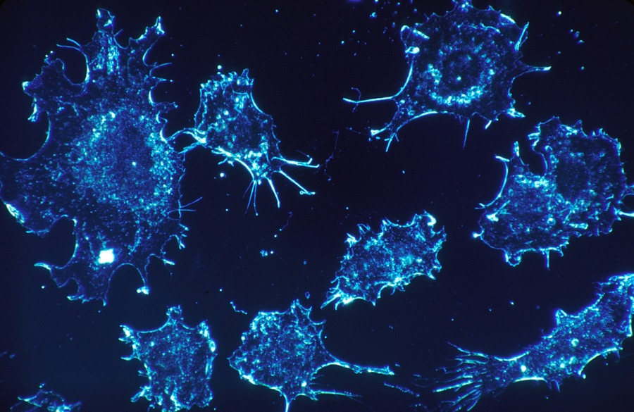 cancer cells - treating, curing, fighting cancer